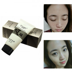 Fade Face Dark Spots Blackhead Speckle Freckle Remove Whitening Mask